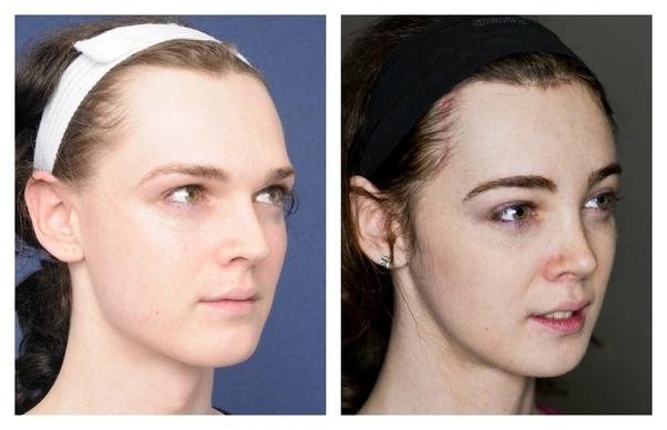 Dr zukowski facial feminization surgery
