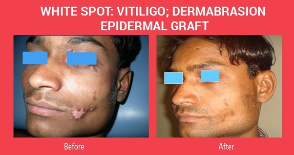 What Is The Best Hospital For Vitiligo Treatment In India Quora
