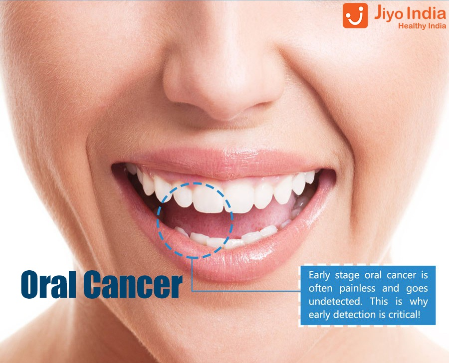 What are the causes of oral cancer and breast cancer in