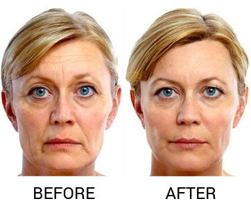 What Are The Inconvenient Side Effects Of Botox Injection
