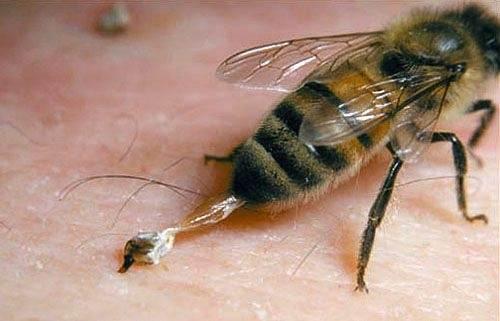 Megcsípett egy méh mit tegyek?