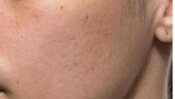 Which Is The Best Scar Removal Cream Quora