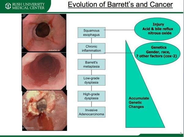 hpv barrett s esophagus)
