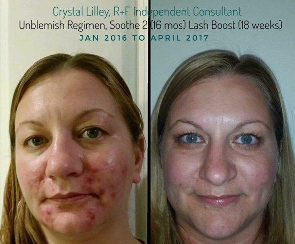Steroid cream on blind pimple steroid folliculitis