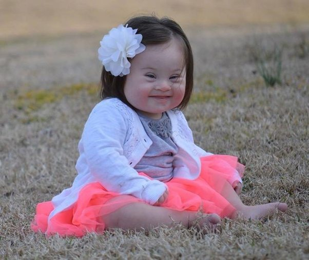 What does a Down syndrome baby look like? - Quora