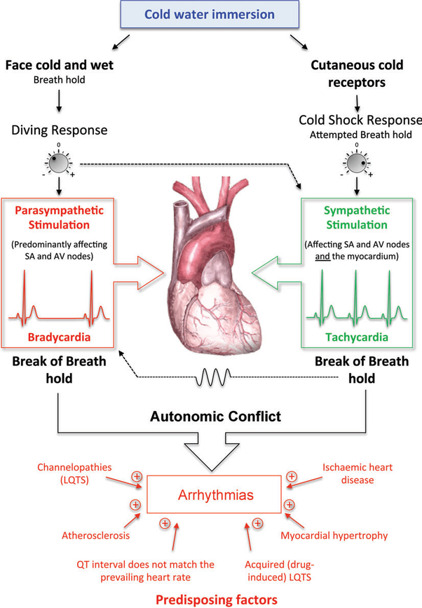 Can your heart go into arrhythmia from drinking cold water