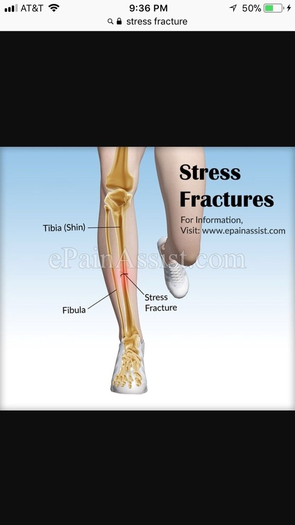 What Are Stress Fractures In Shin Quora