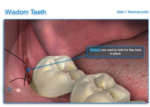 The Pain Will Be Bad For 3 To 4 Days And Worse With All Wisdom Teeth Done In One Session Discuss It Your Dentist Adequate