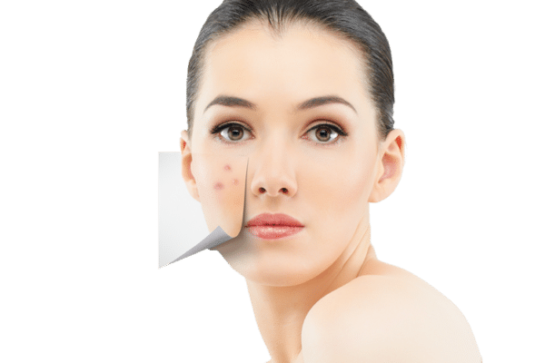 Are skin picking scars permanent? - Quora