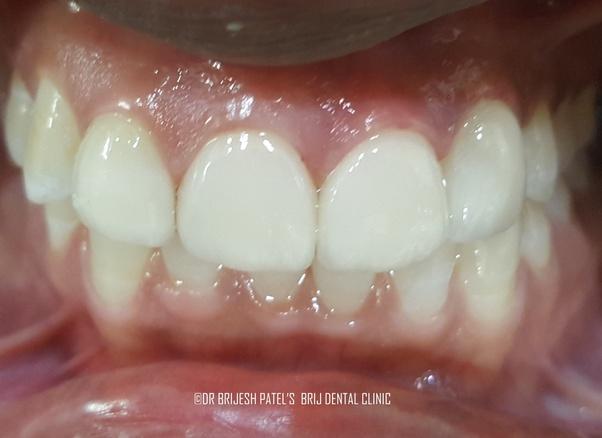 What is the average cost of porcelain veneers in IndiaVeneers Cost Per Tooth