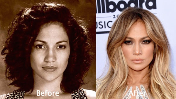 Which Hollywood Celebrities Actually Look Good After Plastic