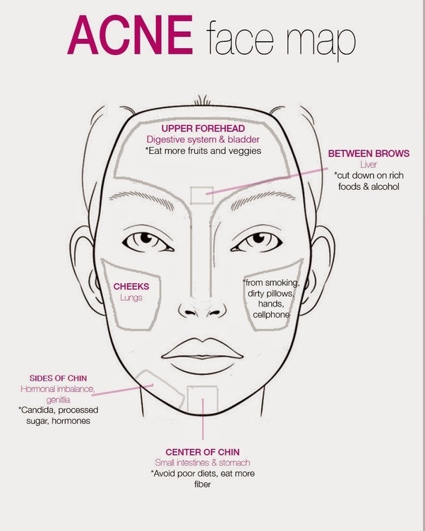 What are some natural ways to get rid of a cystic acne on your ...