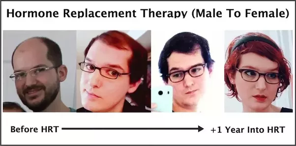 Hormone Replacement Therapy Transgender Mtf