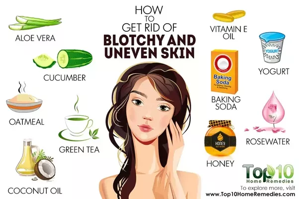 How To Get Rid Of Blotchy Skin Naturally