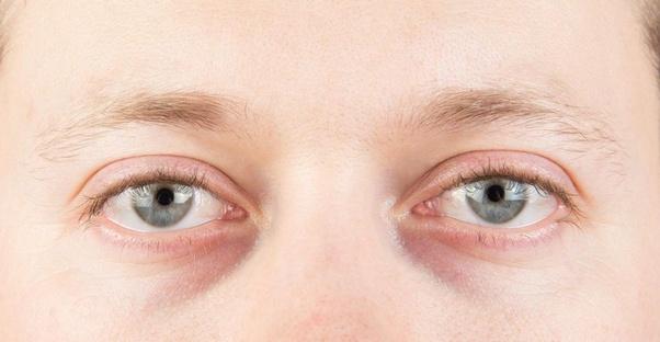 How to remove dark circles naturally - Quora