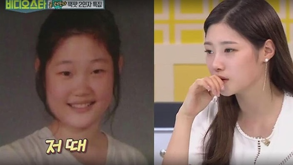 Which K Pop Idols Had Their Plastic Surgery Done Openly Quora