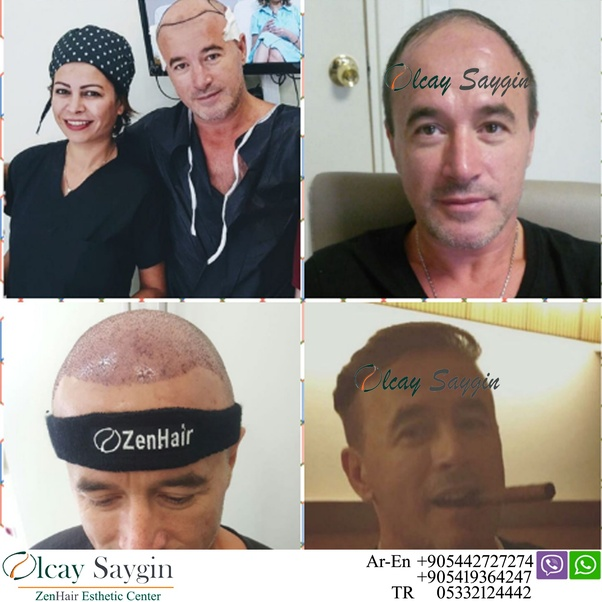 How Much Does Non Surgical Hair Replacement Cost Quora