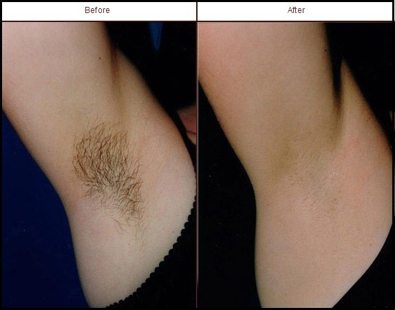 What are full body hair removal by laser costs in india quora so i highly recommend laser hair removal treatment at jaipur skincity with affordable prices schedule a consultation now solutioingenieria Choice Image