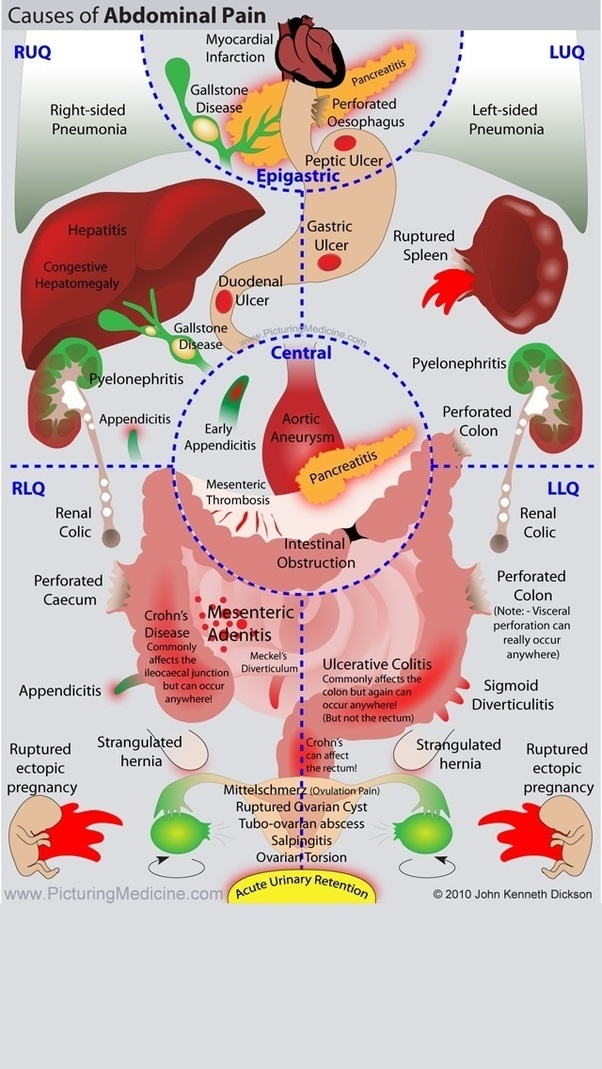 Central abdominal pain diagram product wiring diagrams central abdominal pain diagram images gallery ccuart Gallery