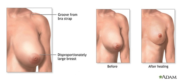 Which Is The Best Hospital For Breast Reduction Surgery In Delhi