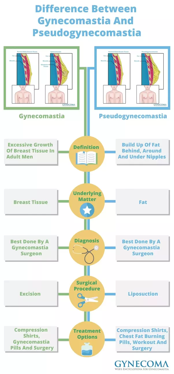 What is the difference between chest fat and gynecomastia? - Quora