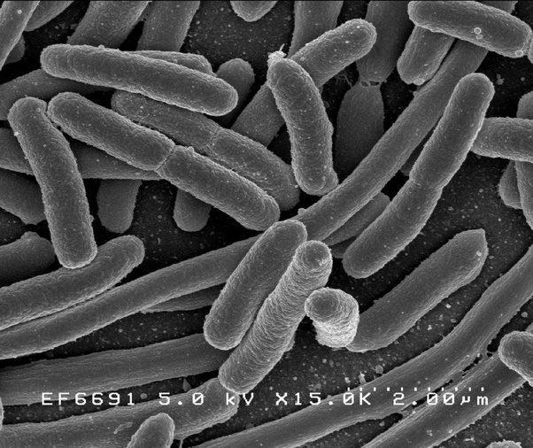 e coli under microscope - photo #10
