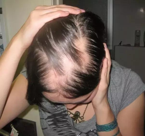 Cat Losing Hair After Shots