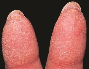 Why Does A Little Flap Of Skin Grow Out Right Under Some Of My Fingernails And Toenails Is