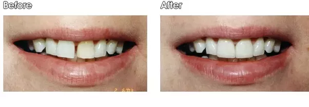 I have big front teeth and visible space between the two what need to keep in mind also that the teeth will become wider and a mock up prior to placing the bonding permanently can give the patient a better idea how solutioingenieria Gallery