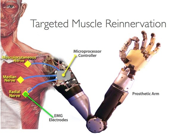 Can shoulder-level arm amputees control the lower arm movements of a ...