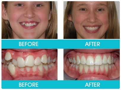 How long it took to fix your teeth with braces? Can you ...