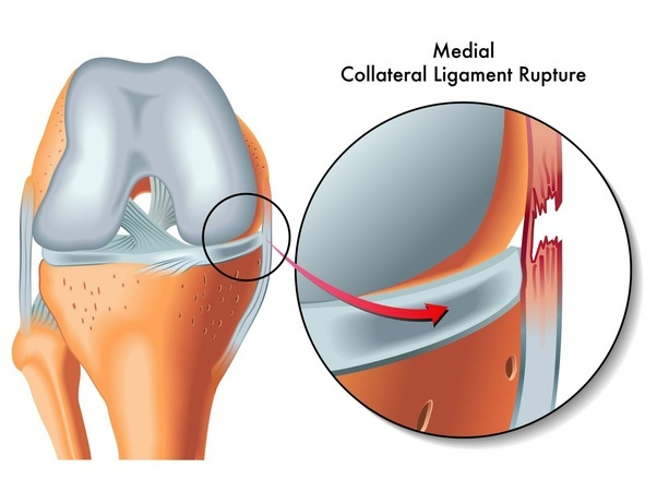 How Many Days Will Take To Recover From Ligament Tear From Ayurvedic