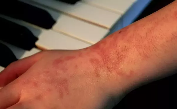 Henna Tattoo Cause Allergies: What Causes Allergy From Mehendi?