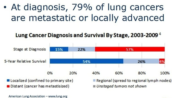 How could a doctor miss the signs of lung cancer in a 81