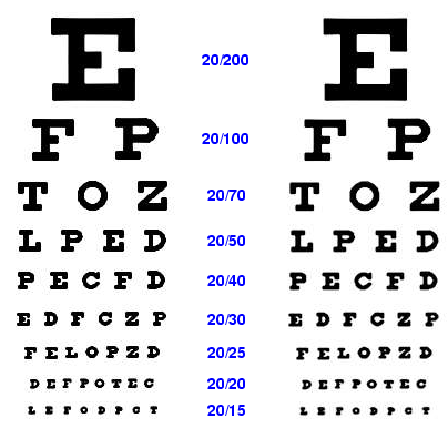 What Eyeglass Contact Prescription Constitutes Legal Blindness Quora