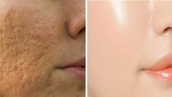 What is the right treatment for open pores? - Quora