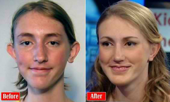 Is 16 too young for cosmetic surgery? - Quora