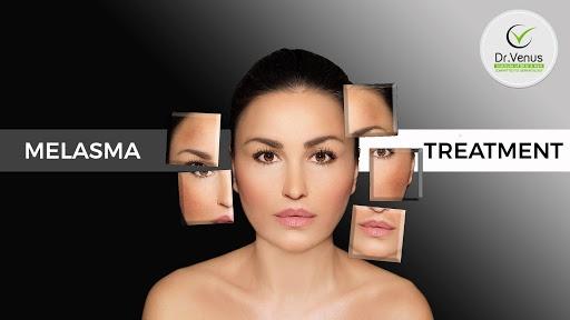 How to treat hyperpigmentaion/melasma - Quora