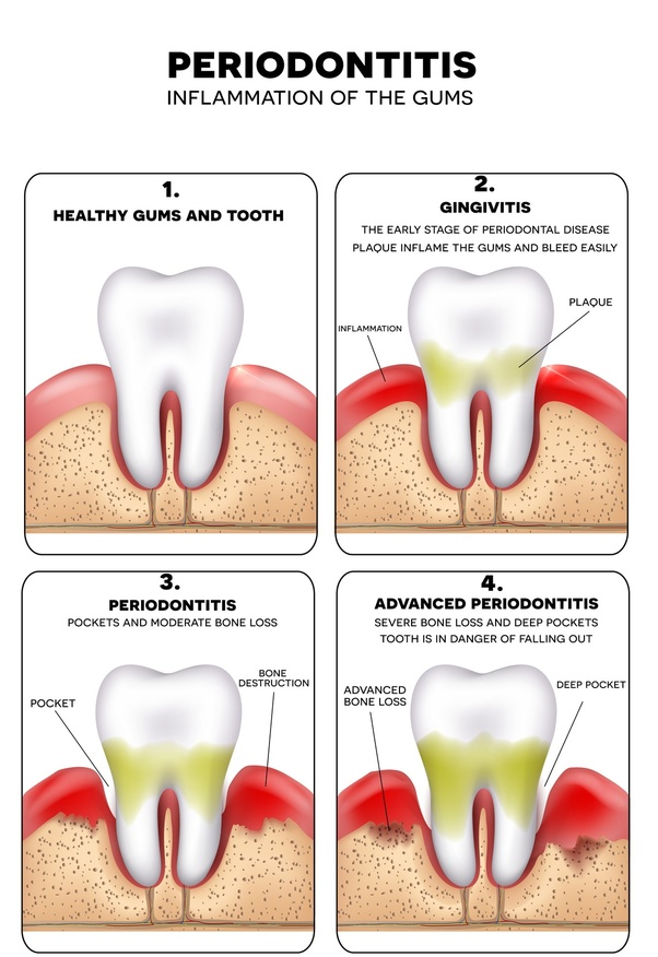Why are my teeth bleeding at night? - Quora