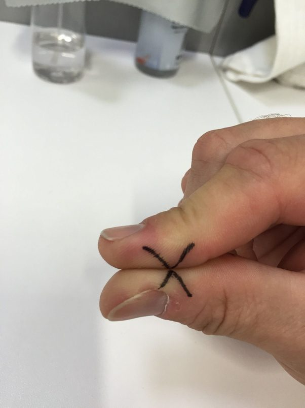 What technique should one use to take off contact lenses ...