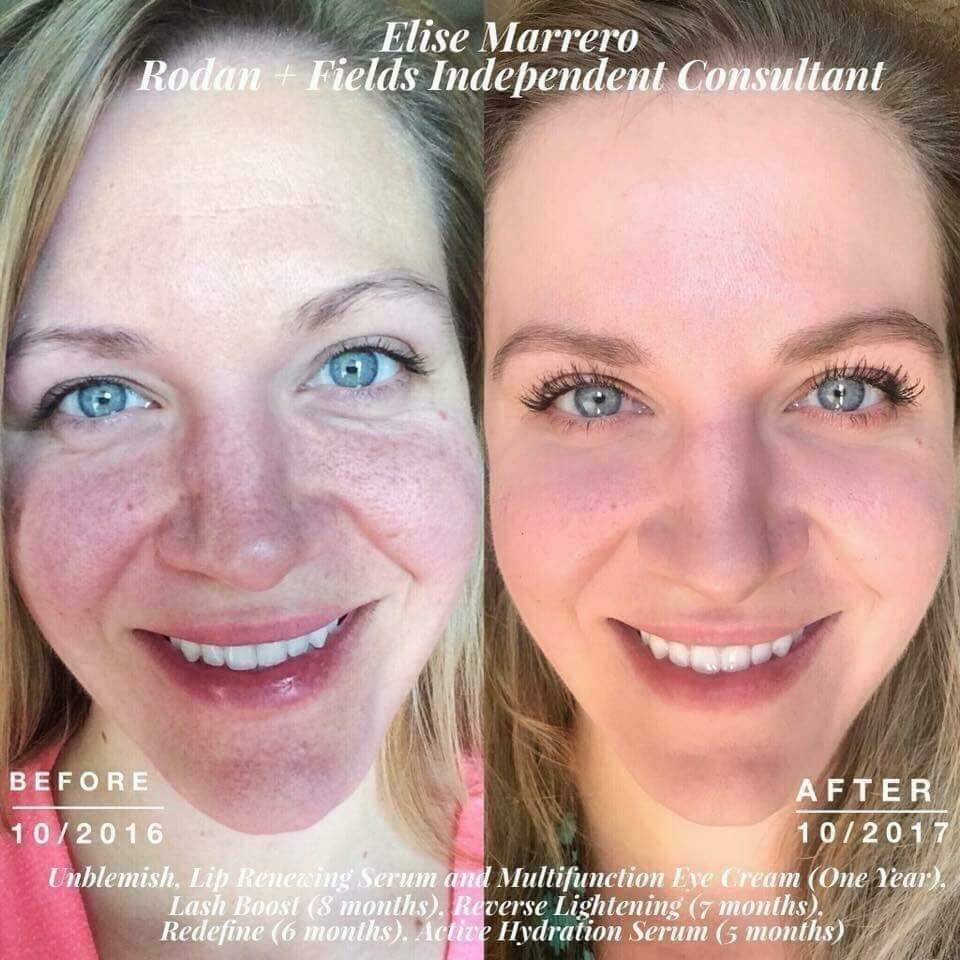 These ladies are using Rodan + Fields Reverse Lightening which contains 2%  hydroquinone in the toner and another 2% in the treatment.