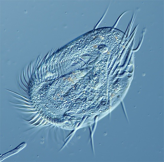 what are some examples of protists with cilia