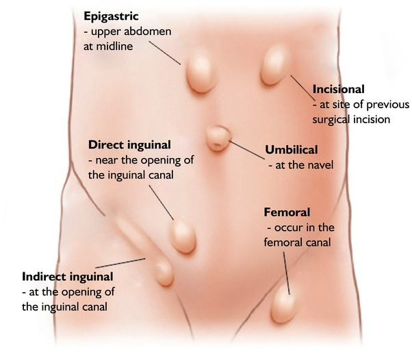 Can A Hernia Grow In Size Quora
