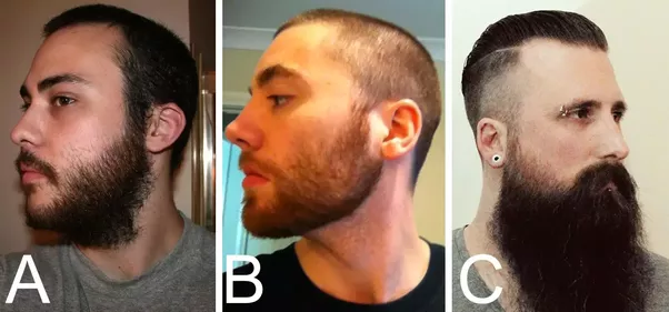 If I am growing out a beard, does the hair growing from my ...