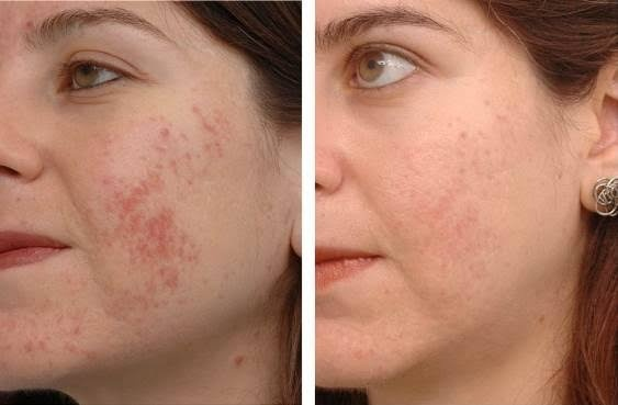 lemon and acne