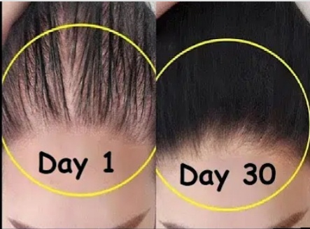 What Are The Ways To Make Your Hair Dense Quora