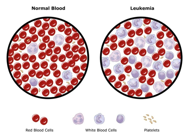 Is there any cure for leukemia? - Quora