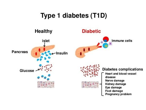 Cortison und diabetes typ 1