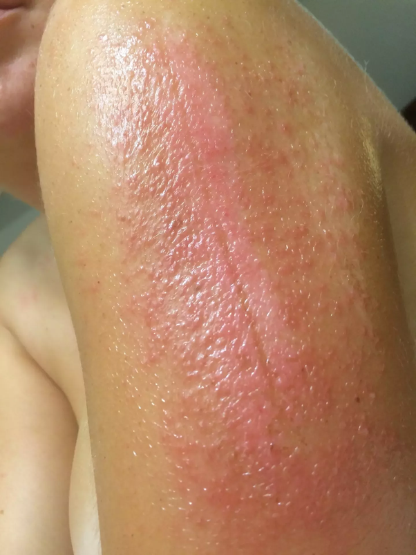 Is it okay to put hydrocortisone cream on a healing second degree