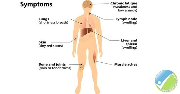what are the symptoms of lymphoma quora